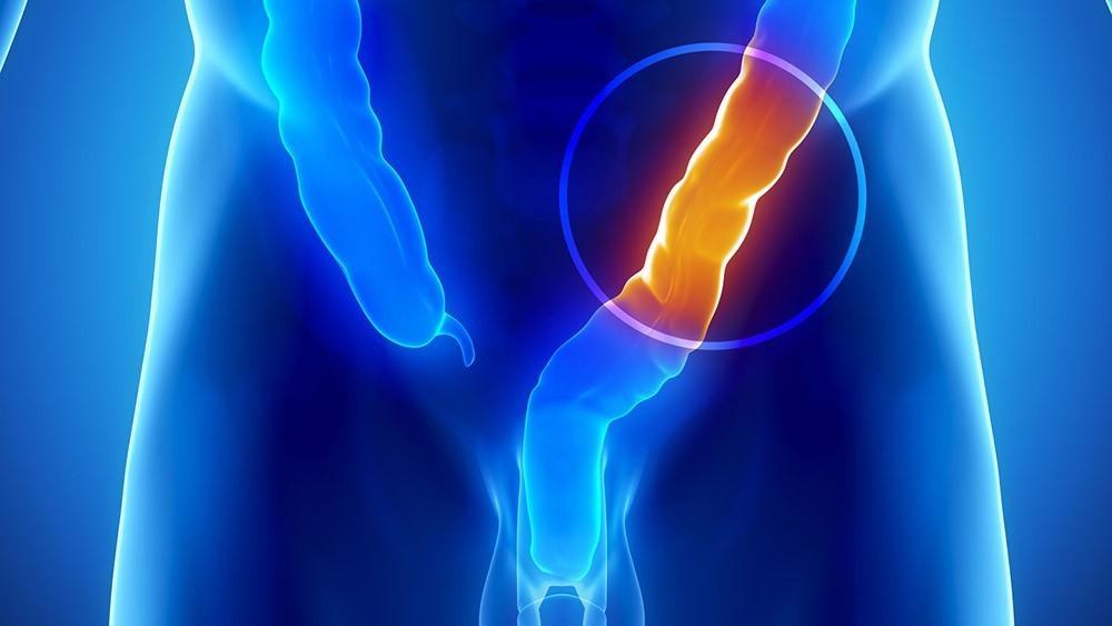 Médico chama atenção para necessidade da prevenção do câncer de intestino