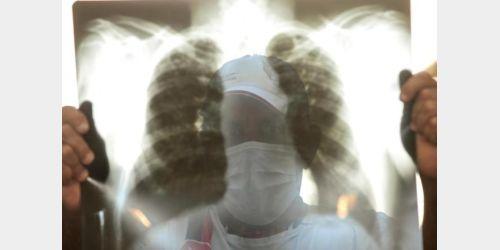 24 de Março: Hoje é o Dia Internacional da Tuberculose